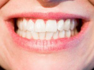 Saubere Zähne mit Munddusche